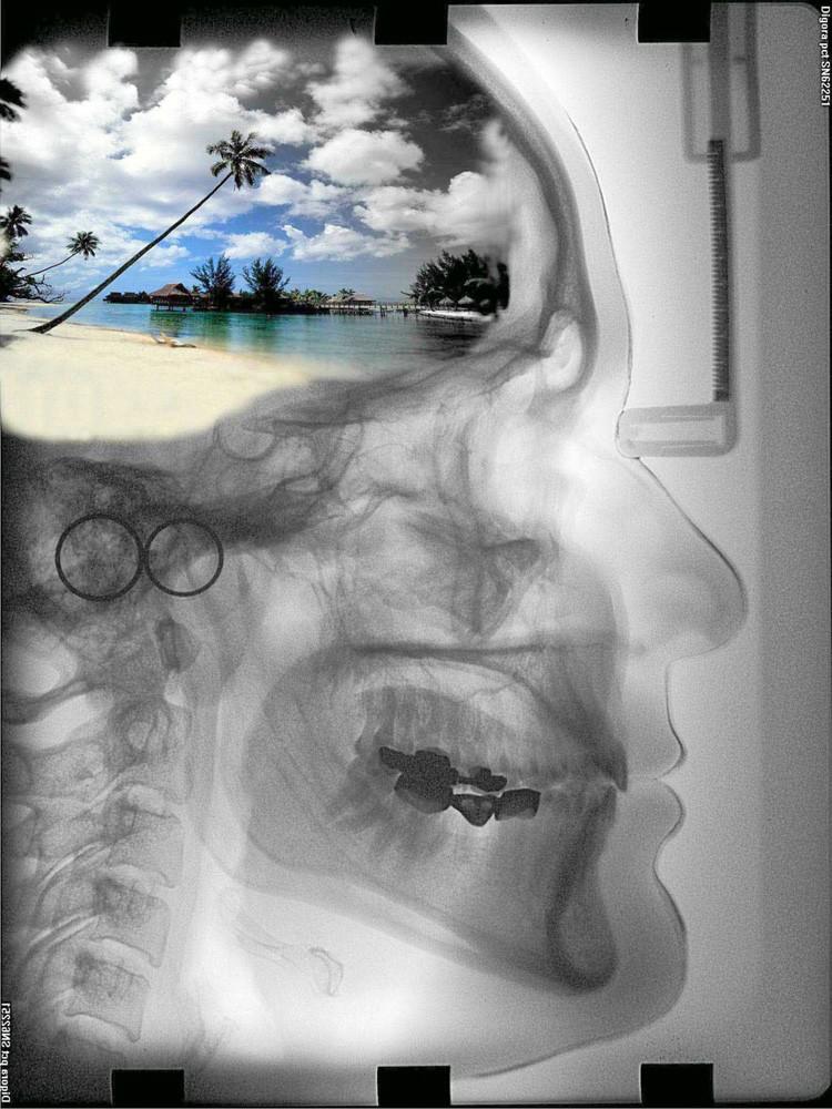 x-ray düşünceler(photoshopta bildiğim kadarıyla düzenledim.) Du351u10