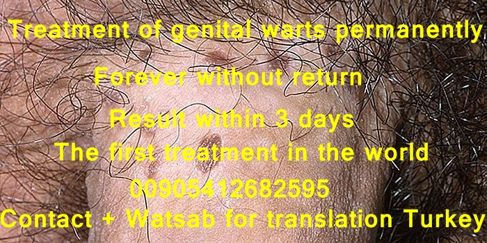 Treat genital warts within 3 days only and remove them forever